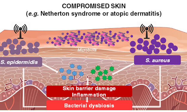 UCSD and SILAB unveil their discoveries on compromised skin microbiota